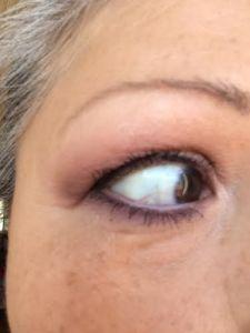 LM Eye